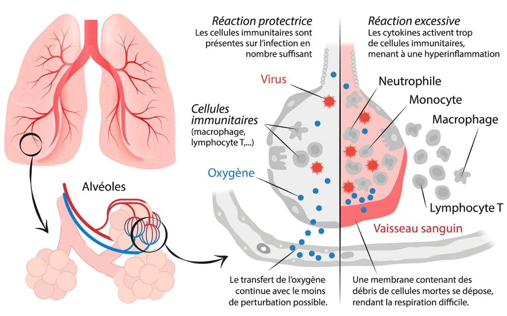 choc cytokinique Nutrixeal Info